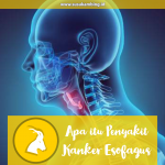 Apa itu Penyakit Kanker Esofagus