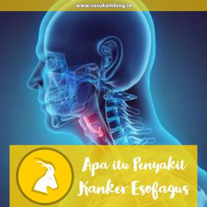 Apa itu Penyakit Kanker Esofagus?